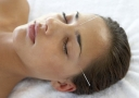 Acupuncture needles sticking out of woman's head - Doctor Mosaraf Ali
